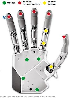 Assistive Technology Blog: Bionic Hand-offers touch and feel real time. Pinned by SOS Inc. Resources.  Follow all our boards at http://pinterest.com/sostherapy  for therapy resources.
