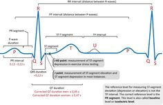 ECG interpretation: Characteristics of the normal ECG (P-wave, QRS complex, ST segment, T-wave) – ECG learning Ekg Leads, Normal Ecg, Qrs Complex, Ekg Interpretation, P Wave, Cardiac Rhythms, Myocardial Infarction, Nursing, Farmhouse
