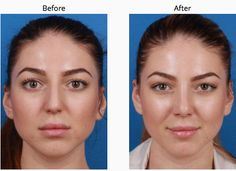 This 20 year old female from New York City did not like her flat and wide nose from the front. She wanted it more narrow and the bump reduced and the tip rotated. I performed an external rhinoplasty with wedge resections of the nasal bones and narrowing of the bilateral open roof with osteotomies. A tongue and groove technique keeps the tip projected. To view more nose job before and after photos, please visit: http://rhinoplastynewyork.com/rhinoplasty-gallery