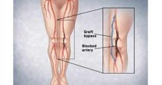 Infographic of bypass graft. Circulatory System, Blood Vessels, Gymnastics, Anatomy, Infographic, Health Fitness, Education, Tips, Remedies