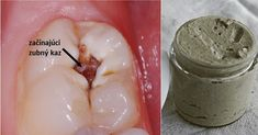 Natural Teeth Whitening Remedies Heal Cavities, Gum Disease, And Whiten Teeth With This Natural Homemade Toothpaste! Gum Health, Teeth Health, Healthy Teeth, Dental Health, Healthy Life, Public Health, Dental Care, Healthy Habits, Toothpaste Recipe