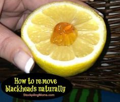 Remove blackheads naturally and fade sun spots!  An all natural tip!