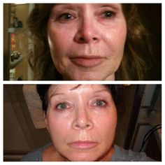 This is my beautiful mom after 90 days on Nerium AD! TamaraHopkins.nerium.com