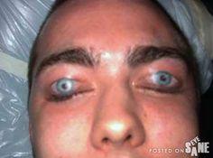Tatoo Eyelids great for sleeping through classes