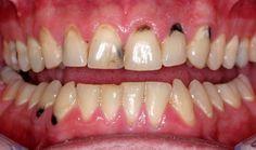 Bước đầu tiên trong quy trình bọc răng sâu là bác sĩ sẽ thăm khám tình trạng răng miệng của bạn có phương pháp điều trị phù hợp nhất.