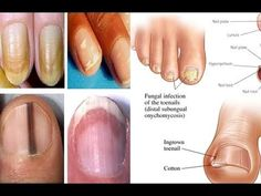 Did you know that the color, texture, and shape of the nails are all a window into the body? Although some nail symptoms are innocuous, others may be a sign of chronic disease, even cancer.