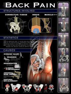 Anatomy of Back Pain. A great reference for massage and fitness professionals. Visit our whole site for more. www.realbodywork.com sacroiliac joint pain relief