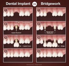 Looking for dental implants at affordable cost? Cosmodontist is one of the best dental implants clinic in Gurgaon. We provide high quality dental implants at affordable cost. Dental Implant Procedure, Teeth Implants, Dental Procedures, Dental Surgery, Dental Implants, Surgery Humor, Dental Health, Dental Care, Oral Health