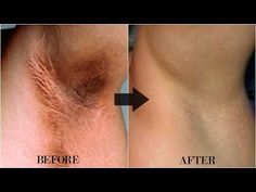 How To Get Rid Of Dark Underarms in 10 Minutes | Remove Dry and Dark Skin | Home Remedies - YouTube