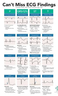 Can't Miss ECG Findings Cards for the Emergency Medicine Provider A high yield, on-shift resource to help Emergency Department providers spot subtle, high-risk ECG findings including Brugada, WPW, HCM, and ARVD. Use this card as a checklist to methodically ensure you are not missing any electrocardiographic evidence of red-flag conditions.