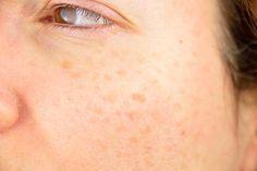 Comment éliminer les taches de vieillesse sur la peau - Améliore ta Santé