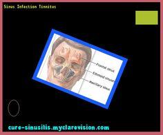 Sinus Infection Tinnitus 104331 - Cure Sinusitis