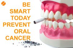 Oral cancer is also called as oral cavity cancer. Best way to prevent oral cancer is to stop using tobacco products and quit smoking. If you notice any abnormal changes in the oral cavity that do not heal within 2 weeks, it is very important to get checked for oral cancer.