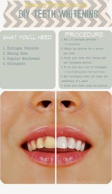 Zoom DIY: 3 Most Working Natural DIY Teeth Whitener