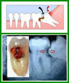 This is the reason impacted wisdom teeth should be removed? If you cannot properly clean them, they will most likely, eventually get cavities and/or gum disease. The arrows point to the decay (cavities).   #Dentistry #PatientEducation  Google+