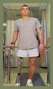 Ten Exercises to strengthen your prosthetic leg.