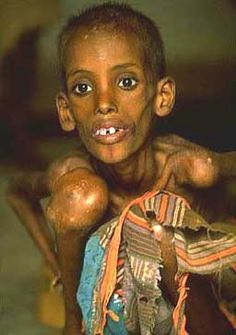 This is what starvation looks like. . . few have so much, and so many have very little.