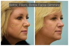 Nose job can improve your look, and for that reason your self-confidence, however it won't always change your seek to match your ideal. Dental Cosmetics, In Cosmetics, Excessive Underarm Sweating, Hyaluronic Acid Fillers, Muscle Disorders, Nose Surgery, Botox Injections, Beauty Hacks, Beauty Tips