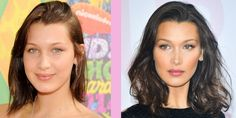 Bella Hadid on whether she's had cosmetic surgery on her face – Care – Skin care , beauty ideas and skin care tips Bella Hadid Surgery, Bella Hadid Nose, Plastic Surgery Photos, Crazy Hair Days, Cosmetic Dentistry, Celebrity Hairstyles, Beauty Hacks, Beauty Tips, Beauty Ideas