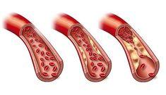 Reduza colesterol e triglicerídeos em poucos dias com estas receitas naturais | Cura pela Natureza.com.br