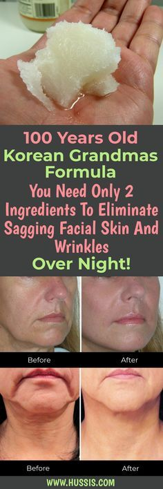 Korean Grandmas Formula You Need Only 2 Ingredients To Eliminate Sagging Facial Skin And Wrinkles Over Night! #skin #skincare #shaggyskin #wrinkles
