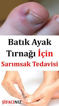 How to Use Garlic for Ingrown Toenail the . S… How to Use Garlic for Ingrown Toenail Garlic is a plant belonging to the Alyum family. Onions are closely related to shallots and leeks. Health Advice, Health And Wellness, Health And Beauty, Health Fitness, Health Book, Afro Hair Loss, Beauty Care, Beauty Hacks, Get Rid Of Warts