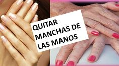 Quitar manchas de las manos . HANS. EFECTIVO Fit Women, Hair Beauty, Youtube, Skin Care, Makeup, Tips, Blog, How To Make, Ham