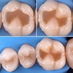 Пошаговый протокол реставрации моляра от Style Italiano.  #dental #dentistry #dentist #tooth  #teeth #зуб #зубы #stomatologia  #stomatology #стоматология #стоматологи #стоматолог #dentista #зубнойврач #dentalassistant  #dent #dentistas #dentists #cosmeticdentistry #dentistrylife #endodontia #endodoncia #endodontics #endodontist #alldental #dentalvideo #odontologia #iloveodontologia #smile