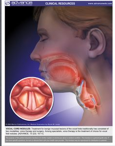Vocal Cord Nodules. Patient Education Handout.  http://speech-language-pathology-audiology.advanceweb.com/Article/Clinical-Resources-5.aspx   Pinned by SOS Inc. Resources http://pinterest.com/sostherapy.