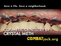Save a life. Save a neighborhood. Cosmetic Dentistry by CRYSTAL METH. http://www.jacksongov.org/content/5243/5251/7484.aspx  #KCPD