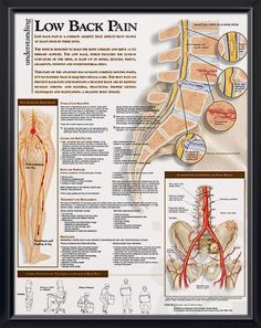 Low Back Pain anatomy poster shows lower spine, pelvis tumors, infections, degenerative disease, ankylosing sponylitis... Skeletal system for doctors and nurses.