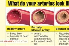 Warning Signs Your Arteries are Dangerously Clogged and Narrowing