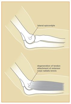 Figure 1 - The muscle involved in this condition - the extensor carpi radialis brevis - helps to extend and stabilize the wrist