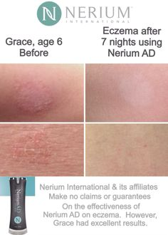 My daughter's results with Nerium AD on her Eczema. Try it and see! DebbyLoves.Nerium.com