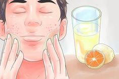 Acne And Oily Skin Get Rid Of Your Acne For Good! Acne is a nightmare cosmetic problem for sure. Many acne patients somet. Acne Treatment At Home, Cystic Acne Treatment, Scar Treatment, Acne Treatments, Acne Face Wash, Acne Skin, Acne Dos, Baby Acne, Natural Acne Remedies