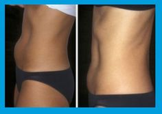 CoolSculpting Thighs Before and After Want to shed some extra body fat? Check out Cool Sculpting