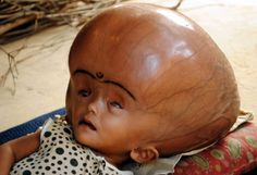 Poor kid.... this is hydrocephalus on an infant