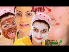 4 RECEITAS CASEIRAS PARA PELE: Contra Cravos, Espinhas, Oleosidade e Manchas | Camilla Amaral - YouTube