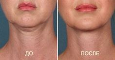 Double chin is a problem both full and thin women. Because the weight gain is only one of the reasons. Among the most common culprits of this trouble,. Muscles Of The Face, How To Stop Coughing, Health Resources, Double Chin, Sagging Skin, Beauty Recipe, Health Coach, Face Care, Health And Beauty