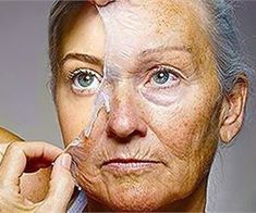 All women dream to have the perfect skin, without wrinkles. Hence, a lot of celebrities use Botox in order to look younger, however, this is not a cheap treatment and not everyone can afford to pra… Amphi Festival, Sagging Skin, Up Girl, Cellulite, Hair Loss, Body Care, Health And Beauty, Beauty Skin, Beauty Hacks