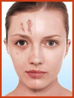 Covering Acne - Makeup For Acne - Top Ten Tips to Protect Your Skin -- For more information, visit image link. #NaturalAcneRemedies