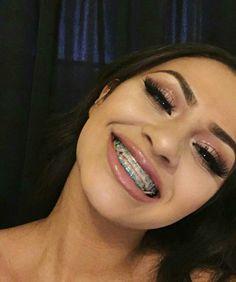 black men with braces Cute Braces Colors, Cute Girls With Braces, Dental Braces, Teeth Braces, Dental Care, Braces Retainer, Braces Tips, Getting Braces, Brace Face