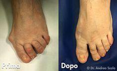 Chi si sottopone ad un intervento alluce valgo correttivo desidera avere una forma del piede in cui la visione sia armonica e gradevole. Dott. Andrea Scala