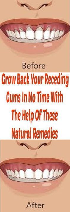 >>>Cheap Sale OFF! >>>Visit>> How to fix the health problem of receding gums with homemade natural remedies only with few steps.Read the article below. Teeth Health, Healthy Teeth, Dental Health, Dental Care, Oral Health, Natural Home Remedies, Herbal Remedies, Health Remedies, Grow Back Receding Gums