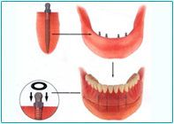 Dental implant success is related to operator skill, quality and quantity of the bone available at the site, and the patient's oral hygiene, but the most important factor is primary implant stability.