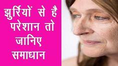 चेहरे की झुरियां हटाने के आसान तरीके