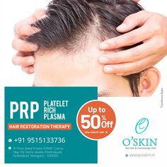 Now Get the Best PRP treatment for Hair Fall, Hair Regrowth through Hair Restoration Therapy with Up to Off only at O'Skin Skin & Cosmetology Clinic, Madinaguda, Hyderabad Book Your Appointment at www. Skin And Hair Clinic, Skin Clinic, Prp Hair, Stop Hair Loss, Hair Loss Remedies, Hair Restoration, Hair Regrowth, Damaged Hair