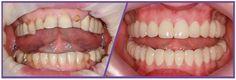 Dental Aesthetics, Medical Information, Tours, Blog, Blogging