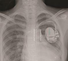 Fetal-pacemaker