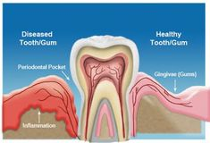 Periodontitis is very common, and is widely regarded as the second most common dental disease worldwide. But do you know periodontal pocket is an important indicator of developing periodontitis? Dental Hygiene, Dental Health, Dental Care, Loose Tooth, Tooth Sensitivity, Dental Cosmetics